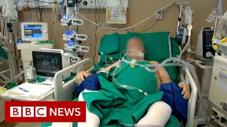 UNIT CORP. Coronavirus: What happens in an intensive care unit? - BBC News