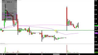 AURIS MEDICAL HOLDING Auris Medical Holding AG - EARS Stock Chart Technical Analysis for 01-23-2019