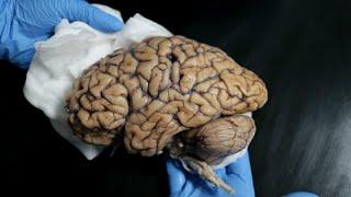 Banco de Cérebros Humanos pede doações a pessoas saudáveis