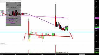 AURIS MEDICAL HOLDING Auris Medical Holding AG - EARS Stock Chart Technical Analysis for 02-13-2019