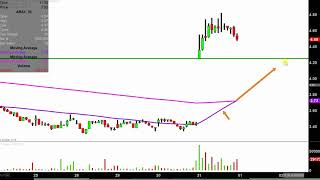 ACCURAY INC. Accuray Incorporated - ARAY Stock Chart Technical Analysis for 10-31-18